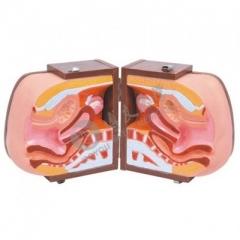 女性避孕器指导模型, 教学演示女性避孕 女性内外生理解剖模具  货号100.HY112